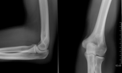 Csonttörés jelei - Egészség | Femina