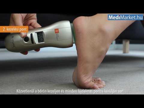 orvosi technológia ízületi kezelés)