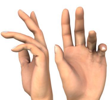 posztraumás ujj artritisz