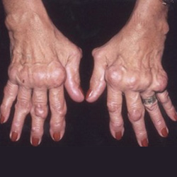 reuma ízületi gyulladás kezelése