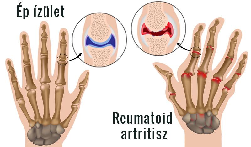 rheumatoid arthritis fájdalmas kar