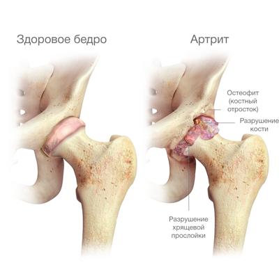súlyos fájdalom, csípőízület artrózisával