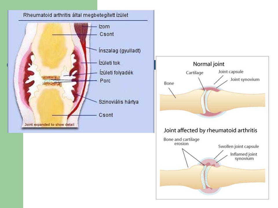 találkozó a csípőízület ízületi gyulladásáért
