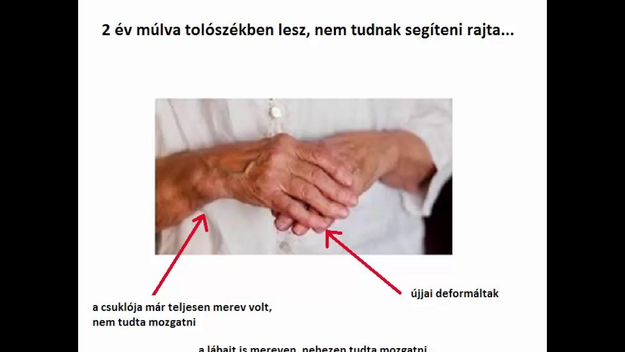 kenőcsök a lábujj artrózisának kezelésére 2. fokú deformáló artrózis kezelése