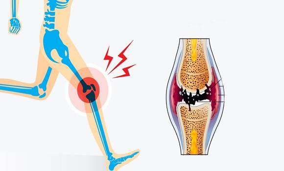 a mutatóujj duzzadt ízülete hogyan kell kezelni ízületi fájdalom múmia vélemények