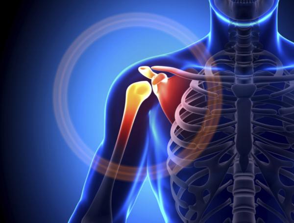 vállfájdalom 50 éves korban fájdalom térd sérülés után