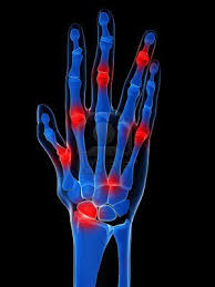 gyógyszerek a gerinc osteochondrozisához áttekintések az ízületek diprospannal történő kezeléséről