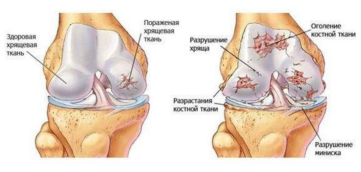 a bal térd gonartrózisa módszerek vállízületi gyulladás kezelésére