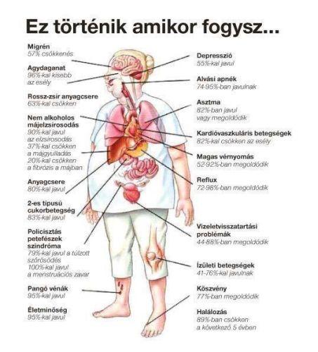 ízületi betegség cukorbetegséggel
