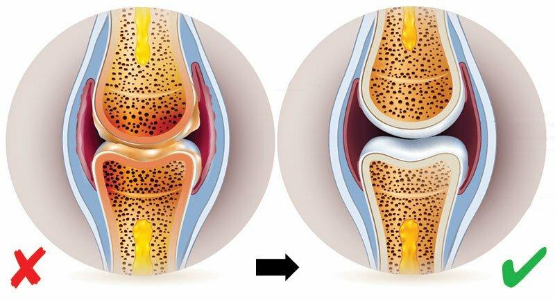ízületi fájdalmakat befolyásoló termékek)