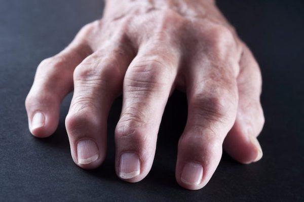 ízületi gyulladás és ízületi gyulladás a lábujjakban