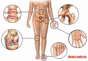 ízületi gyulladás ízületi hatások)