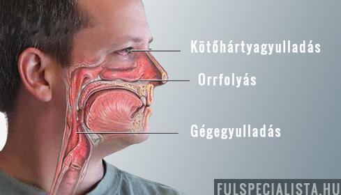ízületi sinusitis tünetei és kezelése