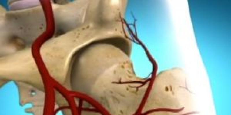 csípő koksz artrózisa)