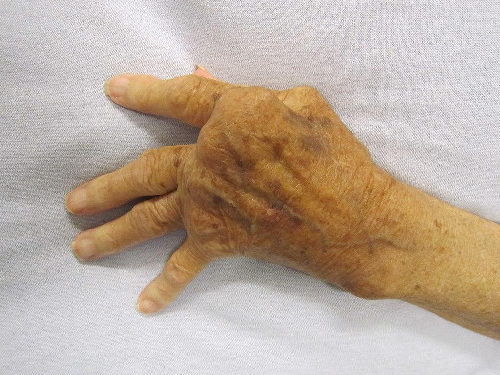 ízületi fájdalom don ár kis ízületek ízületi gyulladása és kezelése