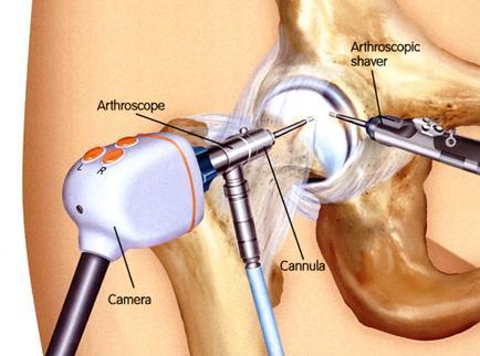 a vállízület első fokú artrózisa)