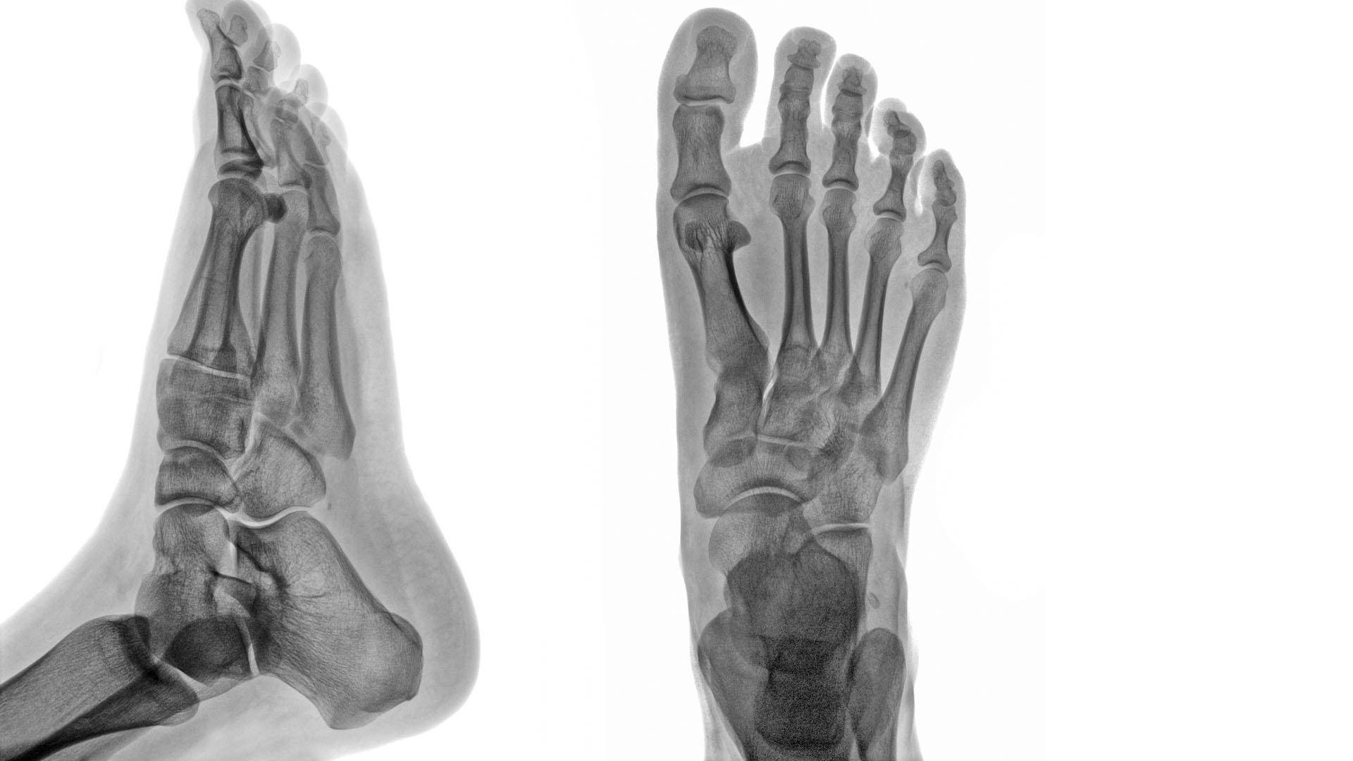 poszttraumás artrosis arthritises bokakezelés)