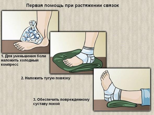 izomfoltok kezelése