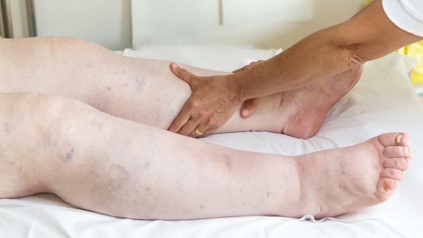 duzzadt bokaízület kezelés
