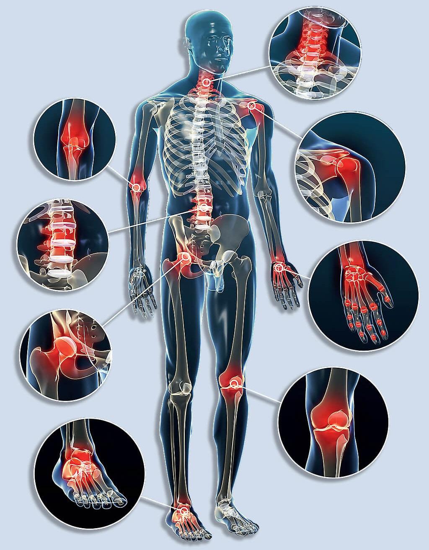 csontok és ízületek fájdalmainak kezelésére térd ízületi gyulladás hialuronsav kezelésének áttekintése