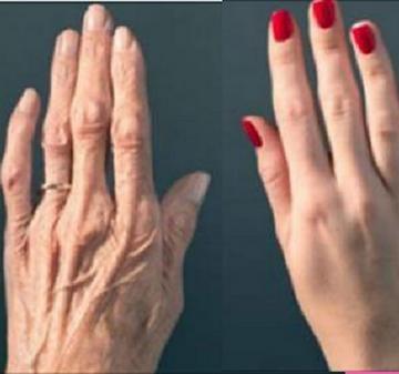 ízületi gyulladás kezek hogyan lehet megszabadulni tőle