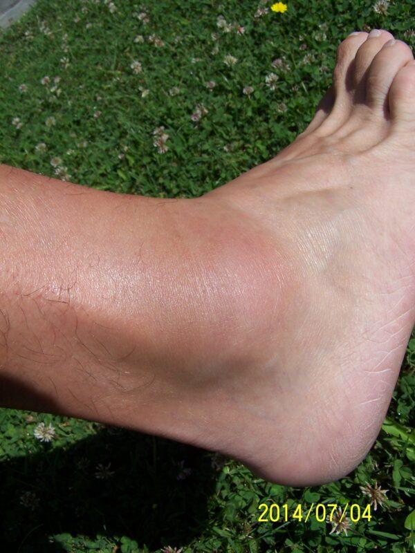 bokaízület és láb betegségei)