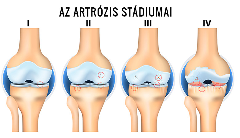 gyógyszerek a csípő artrózisának kezelése