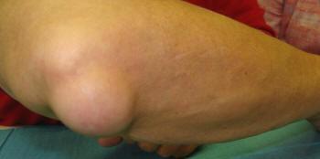a könyök periosteumának gyulladása)
