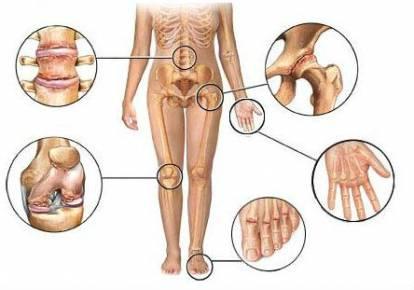 a csípőízületek gyulladásának jelei levofloxacin ízületi fájdalom