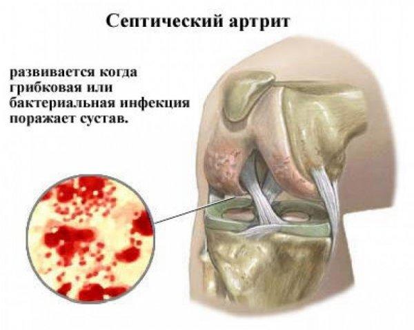 a térdízületek patológiája