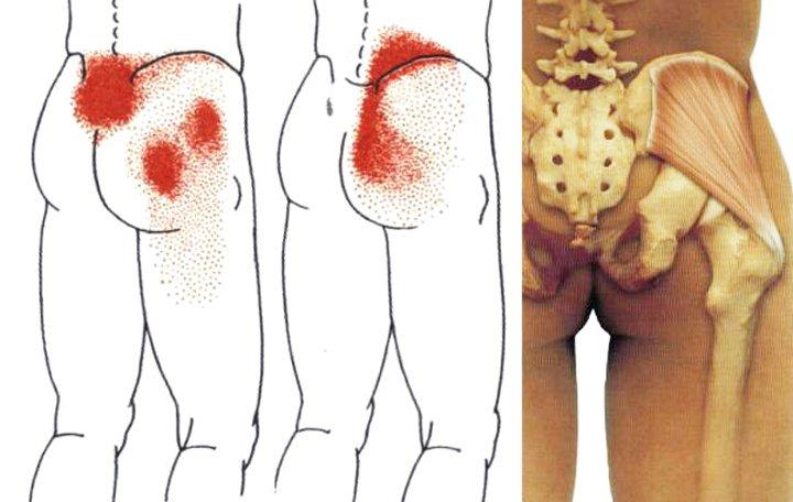 cerebrovaszkuláris baleset nyaki osteochondrozis gyógyszerekkel)