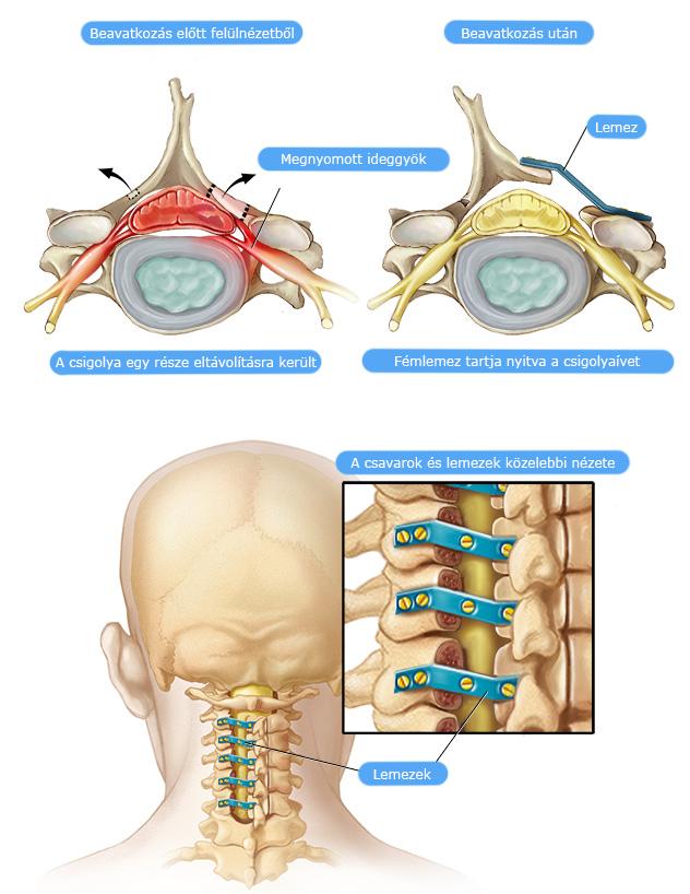 nyaki gerinc gerincvelő kezelése)