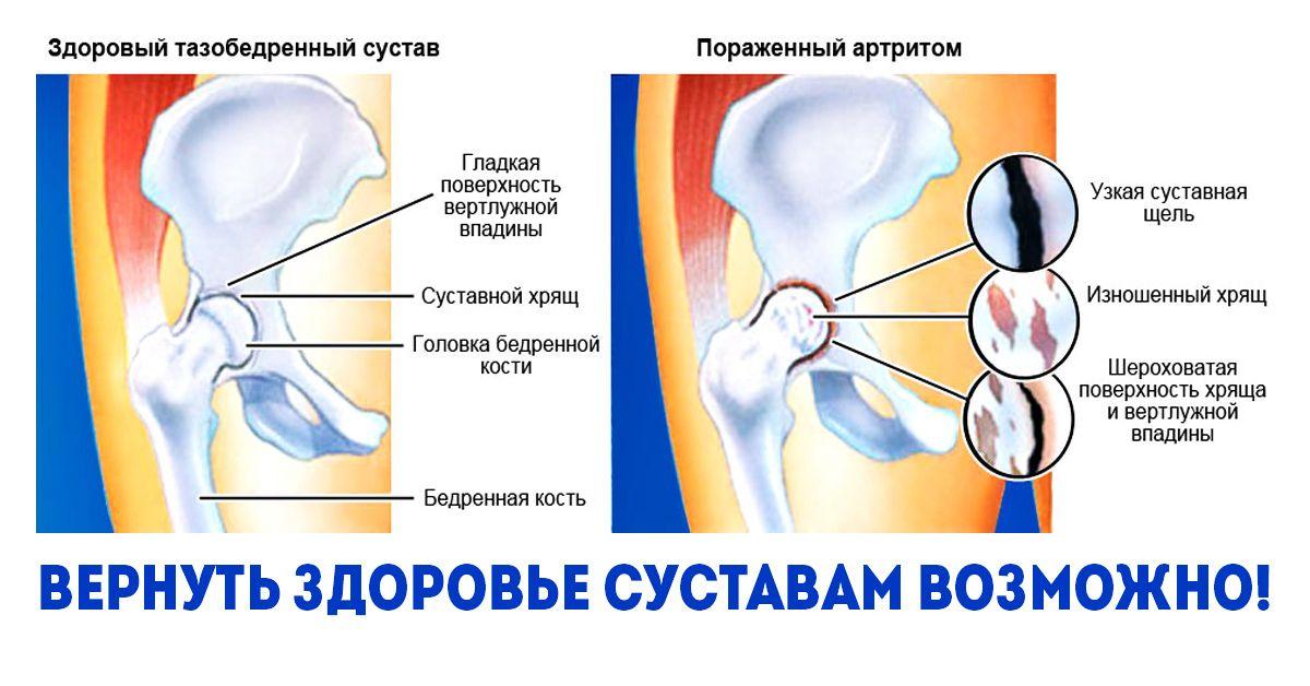 hogyan kezeljük otthon a lábak és a karok ízületeit a csontok fájnak és az ízületek repednek