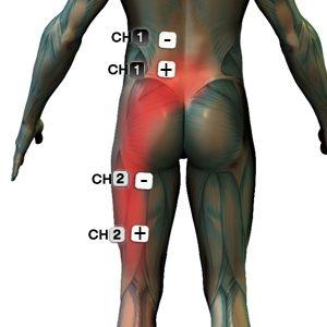 artrózis kezelése mikromotációval)