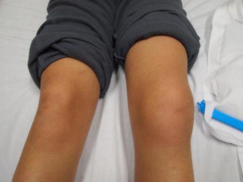 mit kell tenni a lábízületek fájdalmán