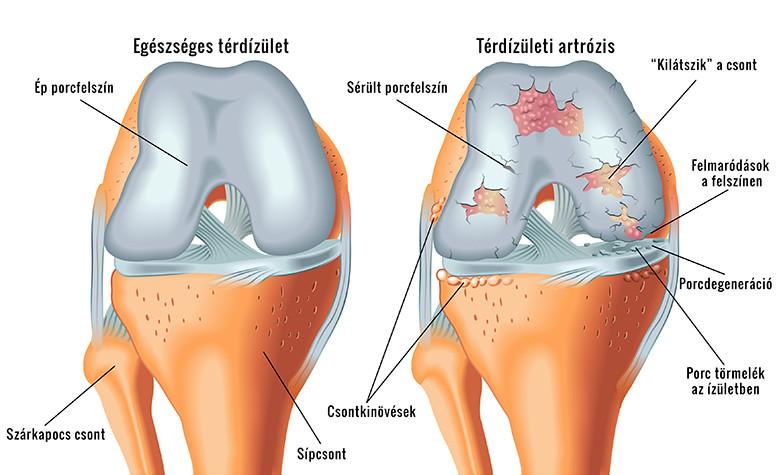 a térdízületek és a szalagok enyhítik a fájdalmat)