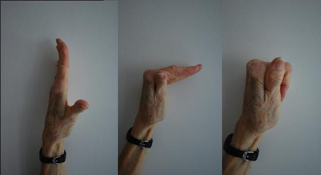oktatás az ujjak ízületein)