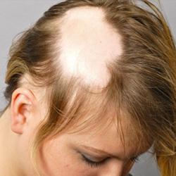 Rossz fog is okozhat hajhullást