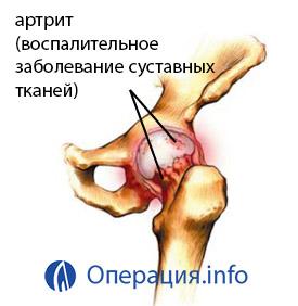 a térdízület 3. fokú posztraumás artrózisa)