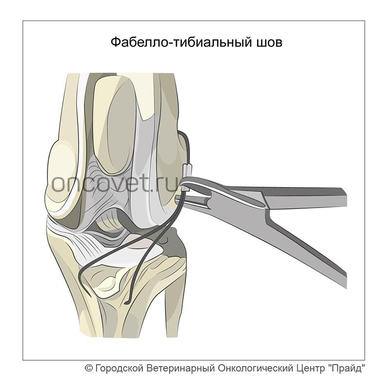 térdre séta az ízületi fájdalomtól csontritkulás milyen kenőcsökkel kezelni