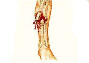 közös sportkezelés térd sérülés ízületi kezelés