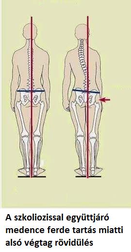 az alsó végtagok ízületei és a láb fáj)