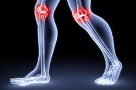 hidrogén-peroxid kezelés a térdízület artrózisában