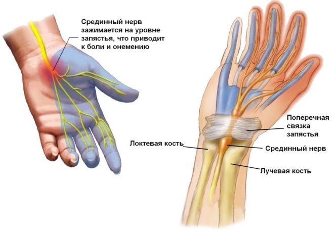 a bal kéz könyökízülete fáj, mint kezelni