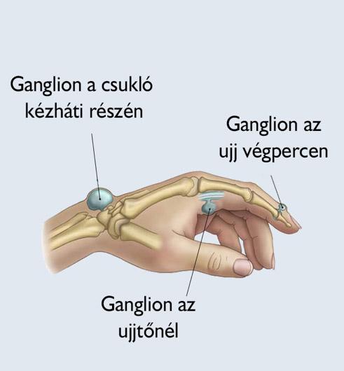 gyógymódok a vállízület fájdalmához)