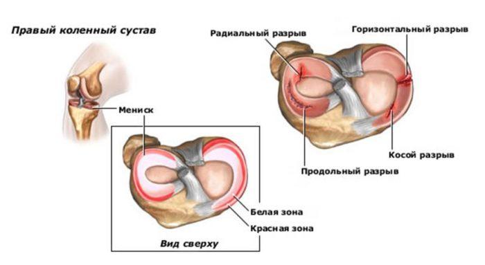 a térdízületek patológiája kicsavart boka javítás