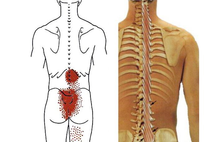 gerinc osteochondrozis és ízületek ízületi kezelése