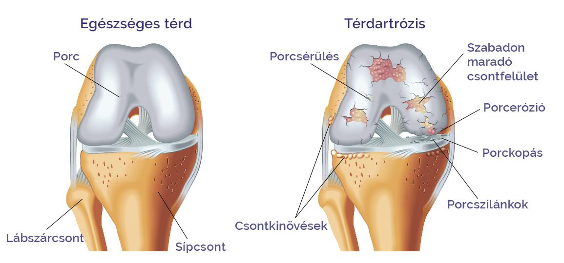 a térd kezelési rendjének artrózisa