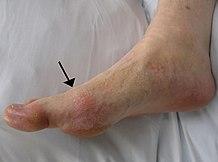 ízületi gyulladás a nagy lábujjban)