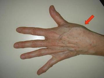 a bal kéz könyökízülete fáj, mint kezelni)